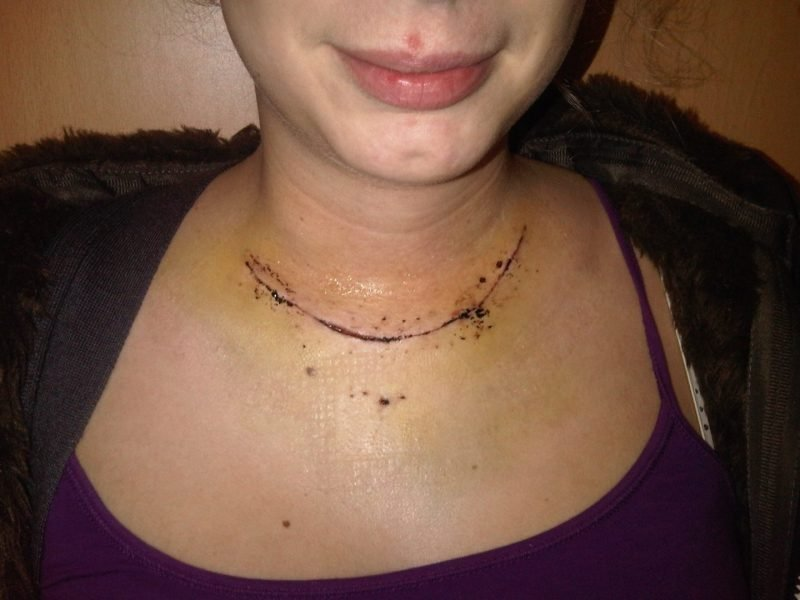 sarah howells the gluten free blogger thyroid surgery behind the scars 15