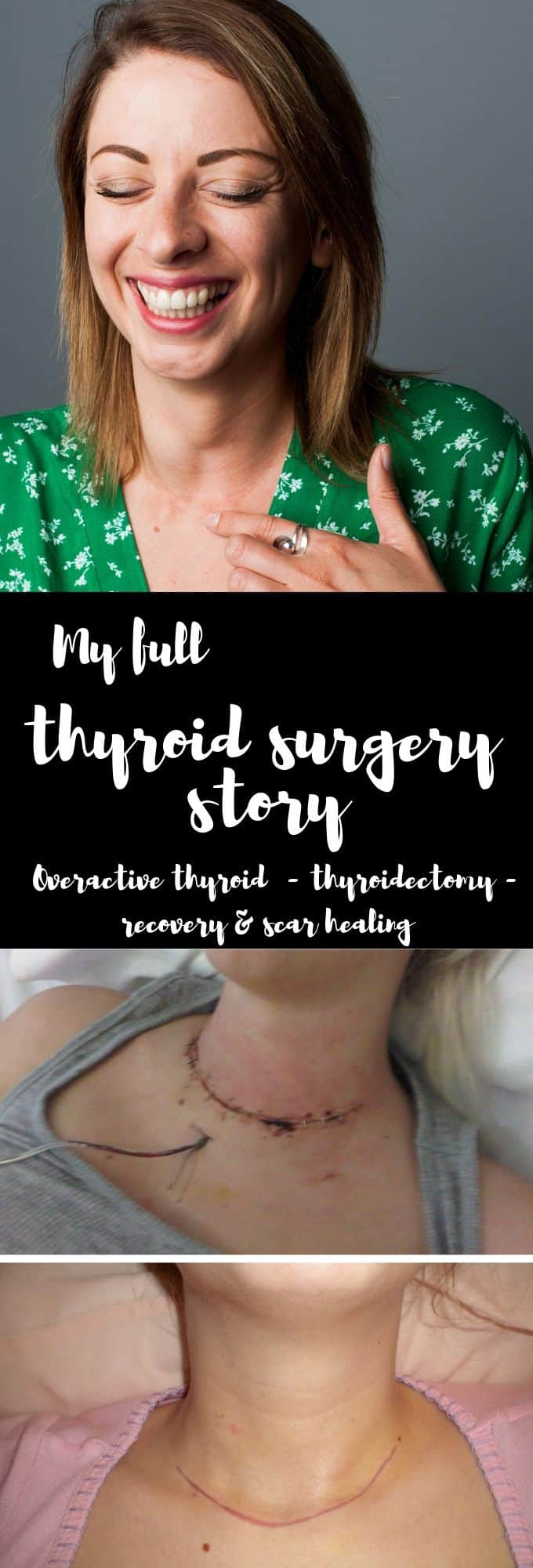 thyroid surgery recovery - my overactive thryoid, subtotal thyroidectomy scar and scar healing and thryoid treatment